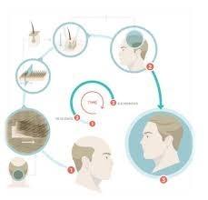 Cosmopolitan Hair Transplant